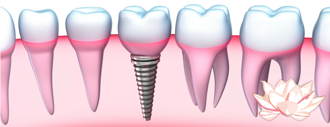 dental-implants-sacramento-ca