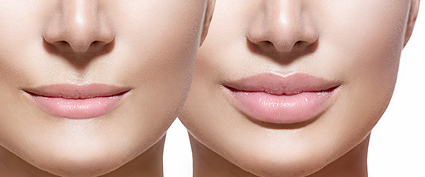 lip-injections-sacramento-ca