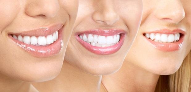 Rapid Orthodontics