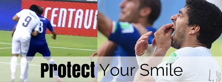 Have you been following the FIFA world cup in Brazil? Here is a classic case of where a sports guard could have come in handy. Receiving a ban that spans far beyond a simple slap on the wrist, there is no doubt that Suarez could have greatly benefitted from a mouth guard on that day!