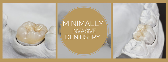 What Minimally Invasive Dentistry Means to You