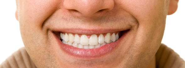 Restoring your smile with porcelain restorations